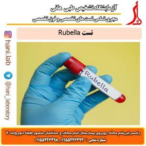 تست Rubella